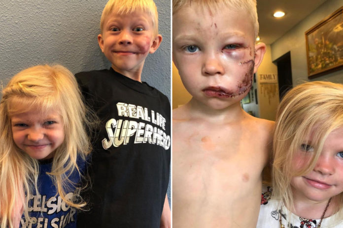 Brother who saved sister in dog attack says he's 'proud' of his scar