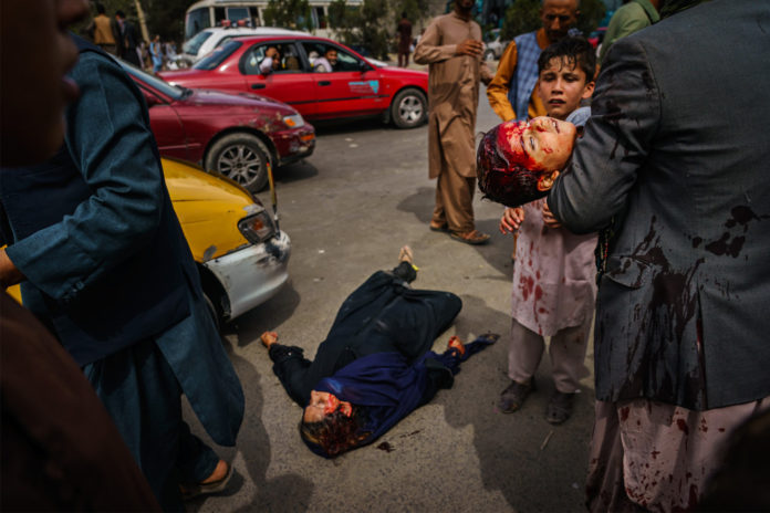 Images show barbaric reality in Taliban-controlled Afghanistan