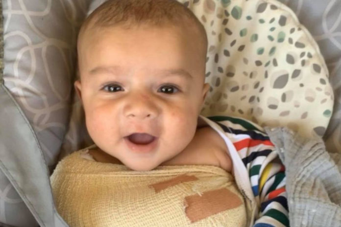 Family seeks answers after baby suffers broken bones when dog falls on him
