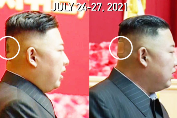 Kim Jong Un seen with mystery spot, bandage on back of head