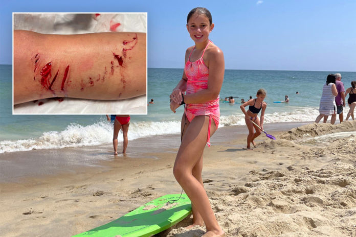 Girl reportedly attacked by shark at popular Maryland beach