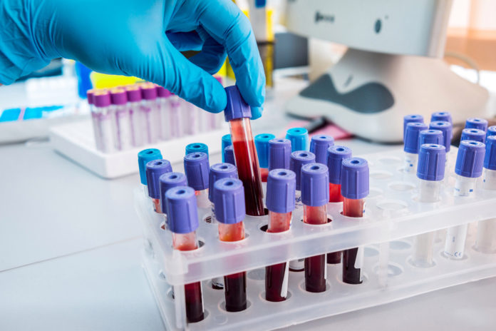Britain begins world's largest trial of blood test for 50 types of cancer