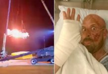 'America's Got Talent' stuntman shares selfie after gruesome accident